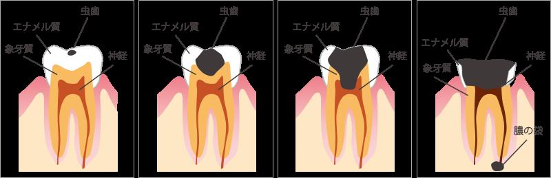 むし歯のステージ