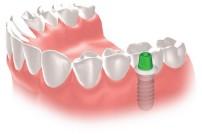 一本の歯を失った方のインプラント治療