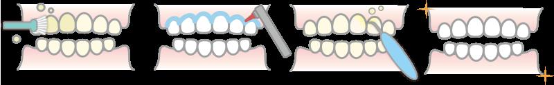 定期検診と歯のクリーニング